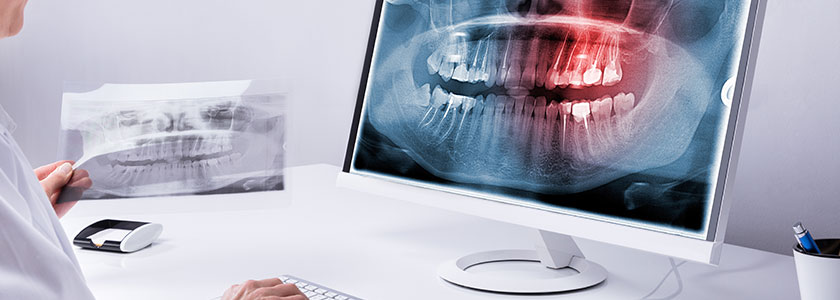 Digital X-Rays | Today's Dental